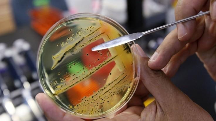 Na Slovensku straší salmonelóza. Ako sa pred ňou chrániť?