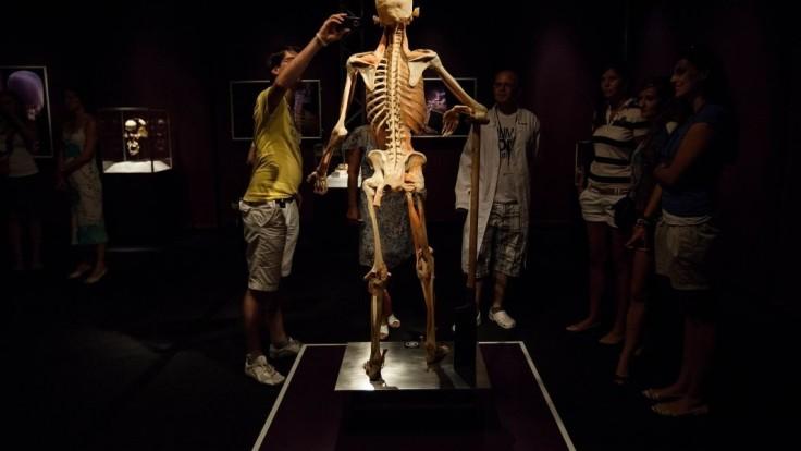 Matovičovcom sa nepáči bratislavská výstava o ľudskom tele