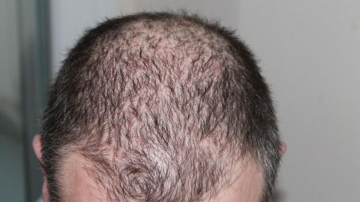 Príčiny, príznaky a liečba vypadávania vlasov. Pomôžu vitamíny a kokosový olej