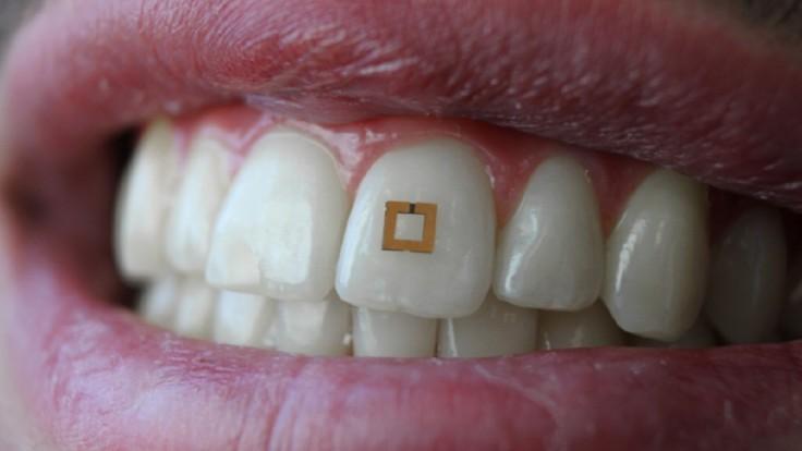 RFID senzor na zube kontroluje príjem cukru, soli a alkoholu