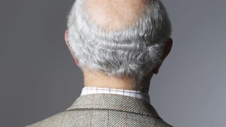 Hlava holá ako koleno straší mužov. Kto za to v skutočnosti môže?