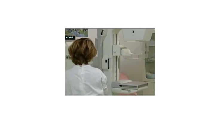 HOSŤ V ŠTÚDIU: Mamografia môže pomôcť odhaliť rakovinu prsníka včas