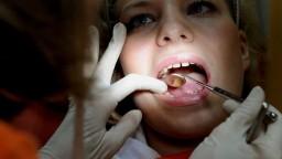 Zubári majú od júla novú povinnosť, súvisí s amalgámom