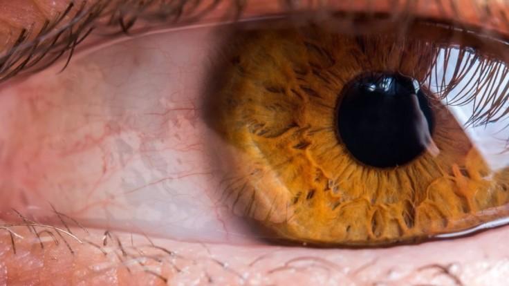 Výrobu očných liekov obnovia, spoločnosť odstránila nedostatky