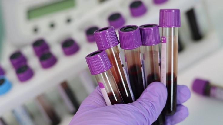 Nový krvný test je schopný odhaliť viac ako 20 druhov rakoviny