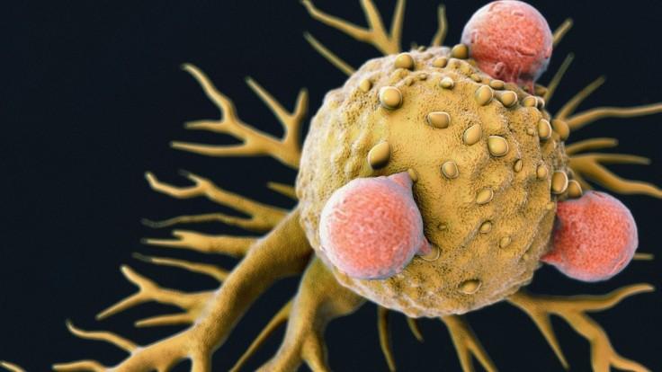 Novoobjavené imunitné bunky by mohli viesť k univerzálnej liečbe rakoviny