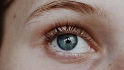 Zatočte s kruhmi pod očami. Bežne dostupná bylinka vyrieši vačky aj tmavú farbu