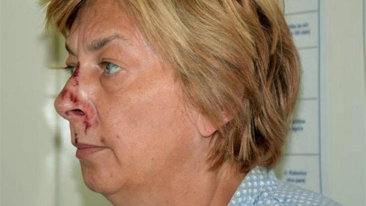 Žena so stratou pamäti, ktorú našli na ostrove Krk, je Slovenka