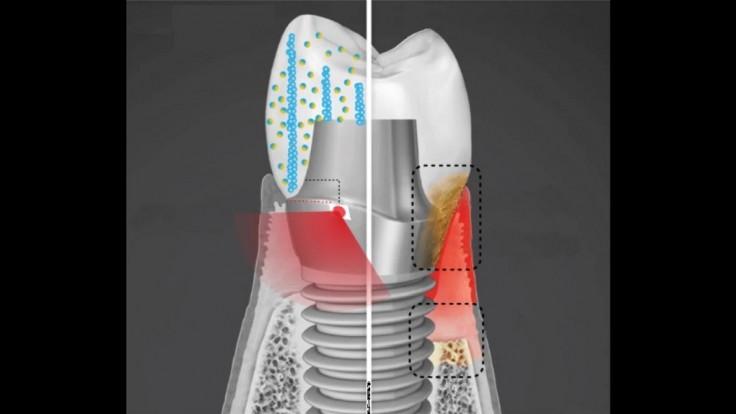 Zubný implantát môže liečiť infikované ďasná generovaním elektriny