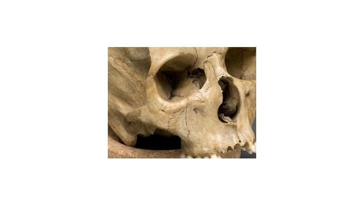 V Košiciach našli kostru neznámeho muža