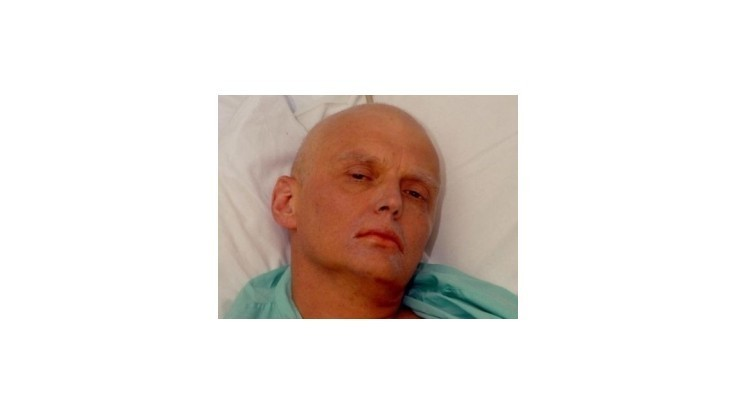 Pitva zavraždeného agenta Litvinenka bola extrémne nebezpečná, tvrdí patológ