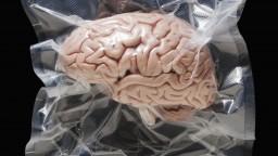 Vedci konečne zistili, čo sa deje v mozgu po užití LSD