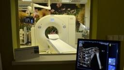 CT prístroje dodá päť spoločností, Drucker hovorí o výrazných úsporách