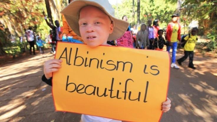 albinism_ac1100ae-6aa1-e1a0.jpg